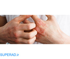 درمان قطعی و کامل پسوریازیس